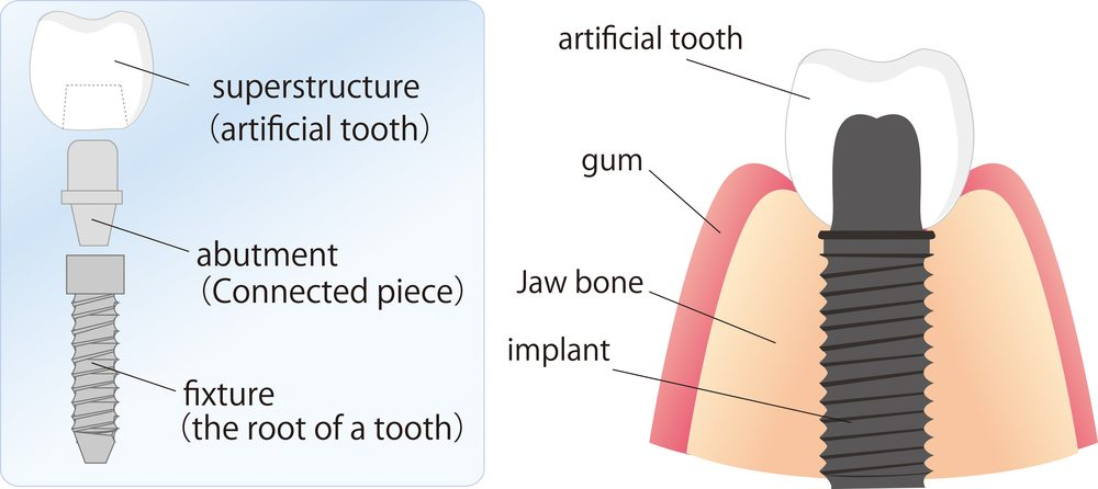 Image showing the parts that make up dental implants and how they fit into the jaw.