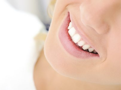 Close-up of a woman's smile after dental bonding services at Pankaj Narkhehe DDS in Lake Forest CA.